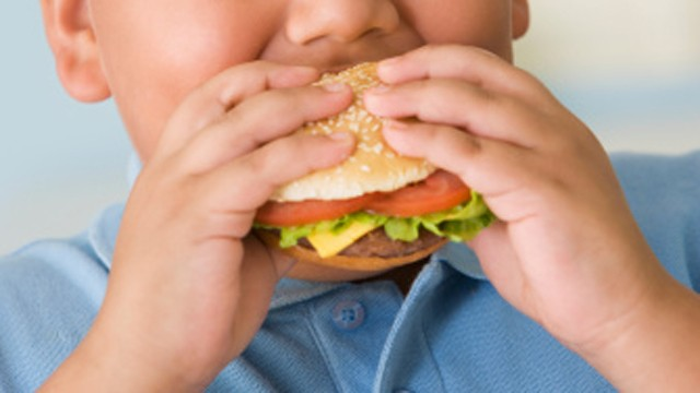 Understanding Childhood Obesity And Ways To Prevent It